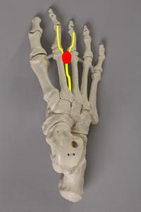 Morton Neurom und Nevenbahnen